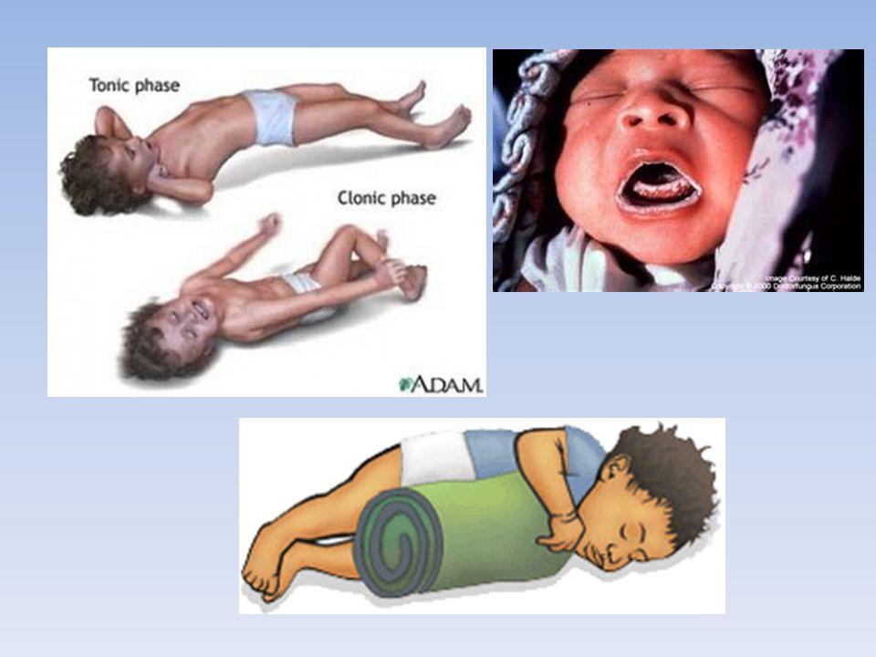 Les convulsions fébriles