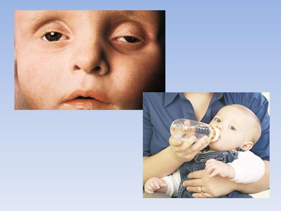 Lors de diarrhée, surveiller les signes de déshydratation chez l'enfant comme les lèvres sèches, les yeux creux (voir image du haut), le pipi moins présent, l'enfant pleurant sans larmes, la somnolence...