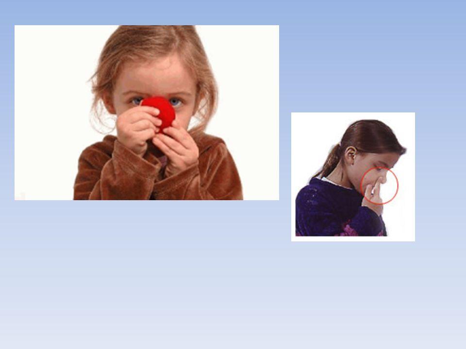 Le saignement de nez (epistaxis)