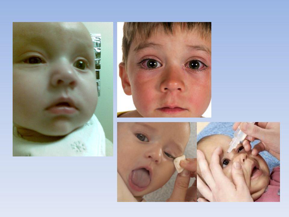 La conjonctivite Infection des yeux causée par des virus ou des bactéries. Rougeur et un gonflement des yeux ainsi qu'un écoulement jaunâtres.