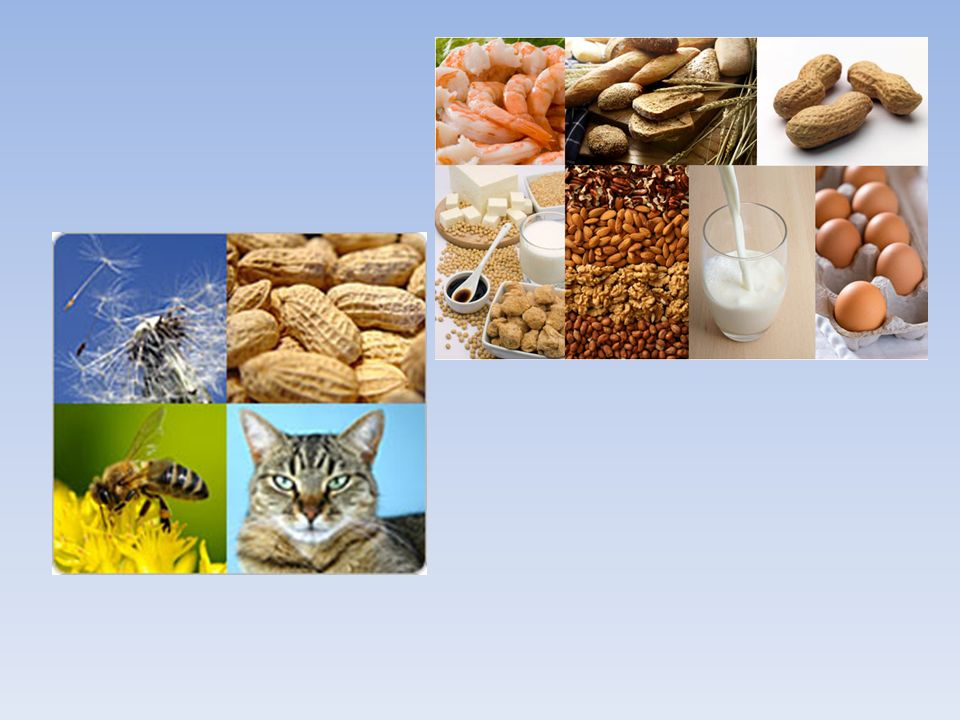 Les allergies Réactions à certaines substances de l'environnement ou allergènes: Aliments, Médicaments, Insectes.