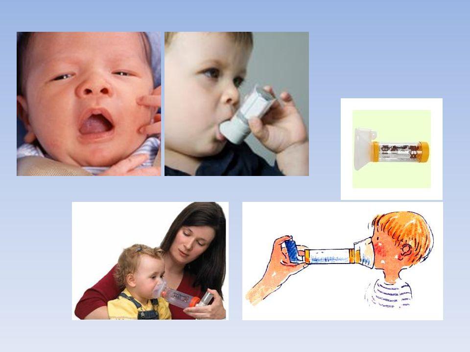 L'asthme Maladie chronique des voies respiratoires. Suite à un effort physique brutal ou d'origine allergique.