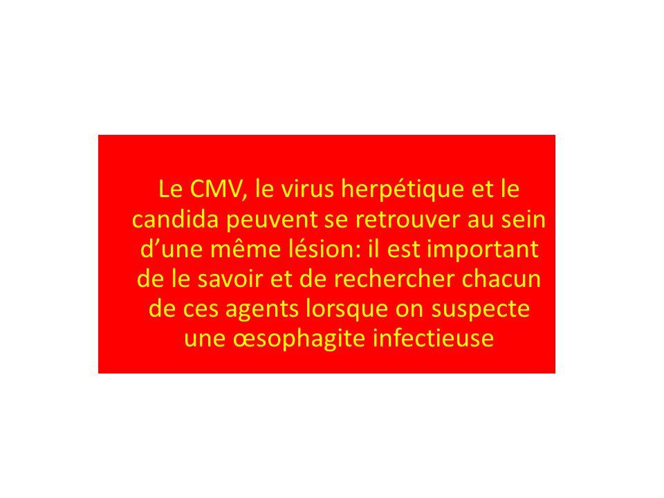 Le CMV, le virus herpétique et le candida peuvent se retrouver au sein d'une même lésion: il est important de le savoir et de rechercher chacun de ces agents lorsque on suspecte une œsophagite infectieuse