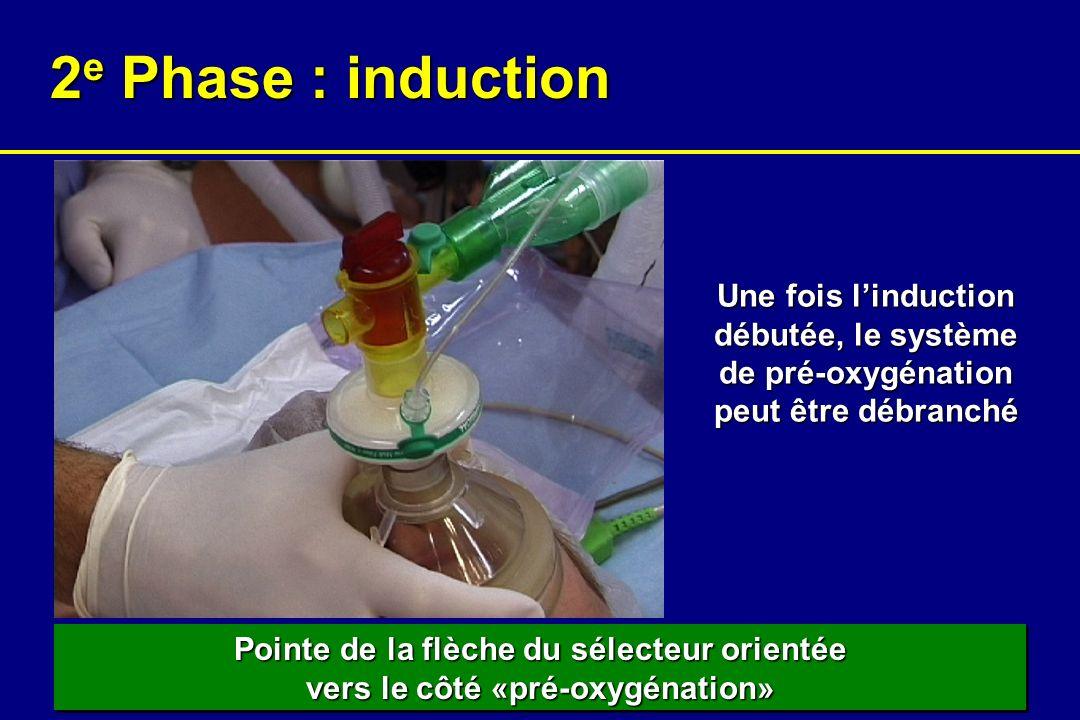 2e Phase : induction Une fois l'induction débutée, le système de pré-oxygénation peut être débranché.