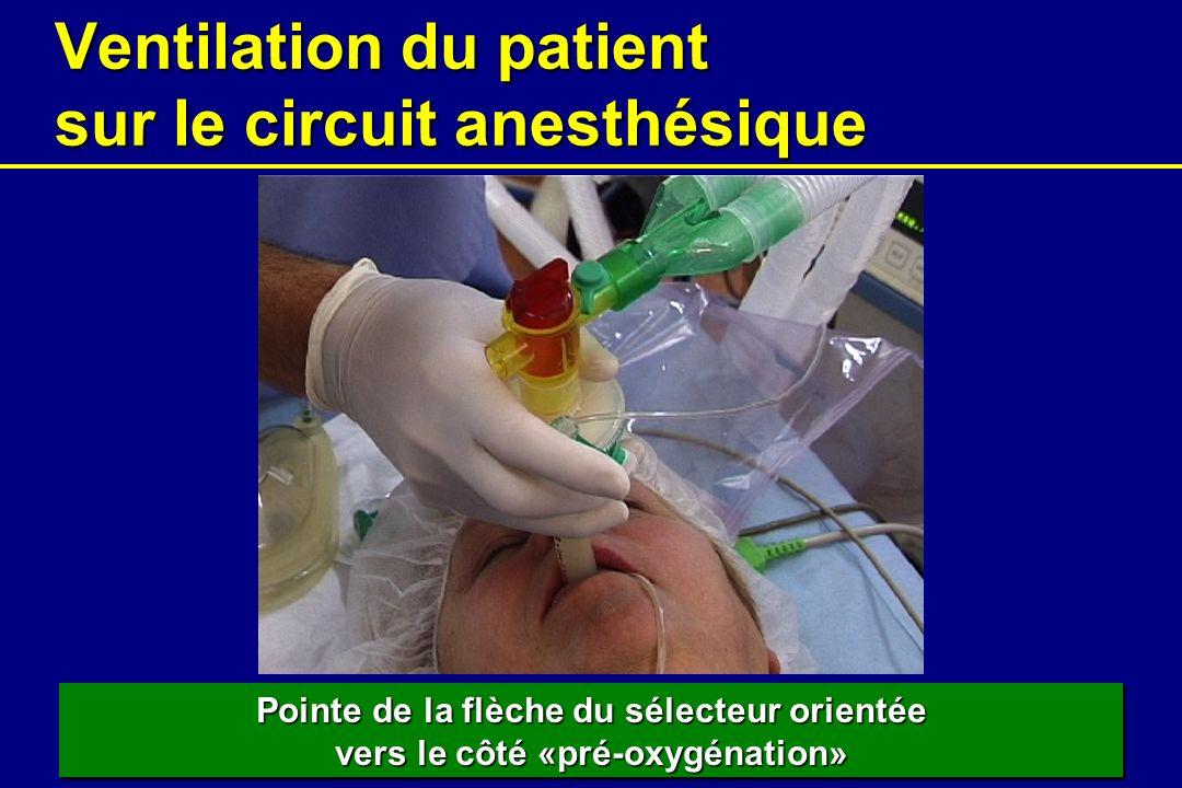 Ventilation du patient sur le circuit anesthésique