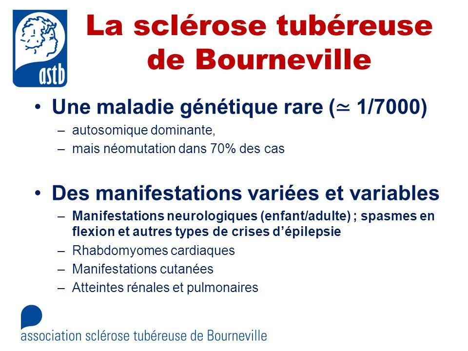 La sclérose tubéreuse de Bourneville