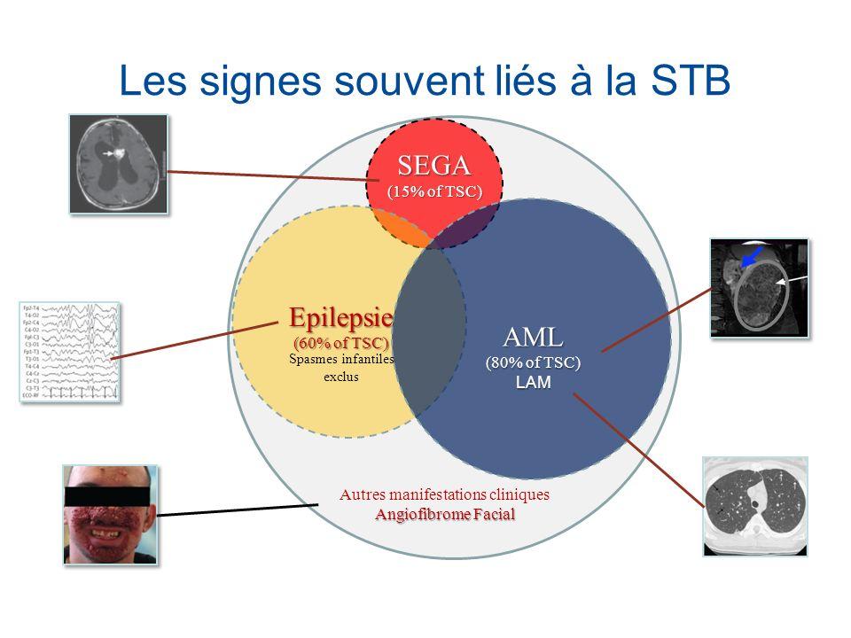 Les signes souvent liés à la STB