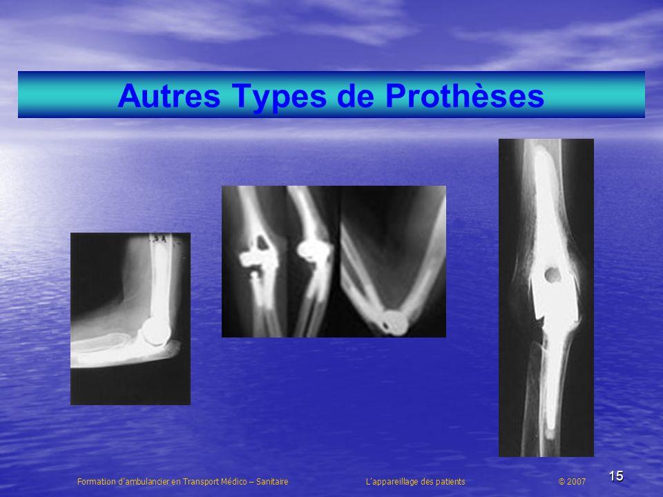 Autres Types de Prothèses