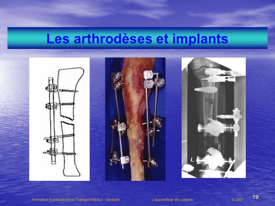Les arthrodèses et implants