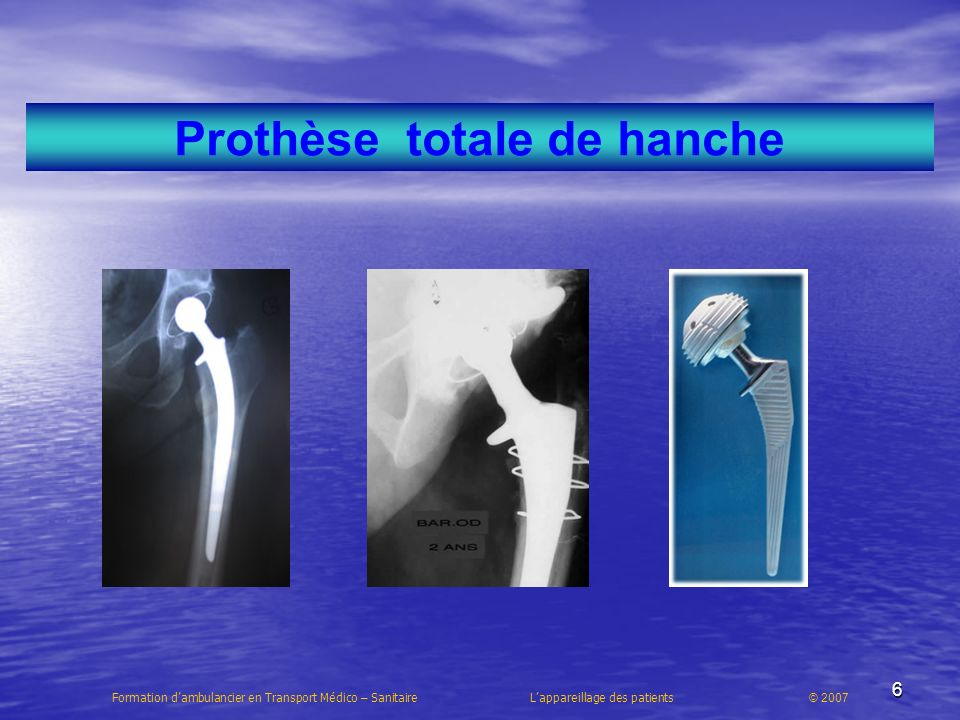 Prothèse totale de hanche