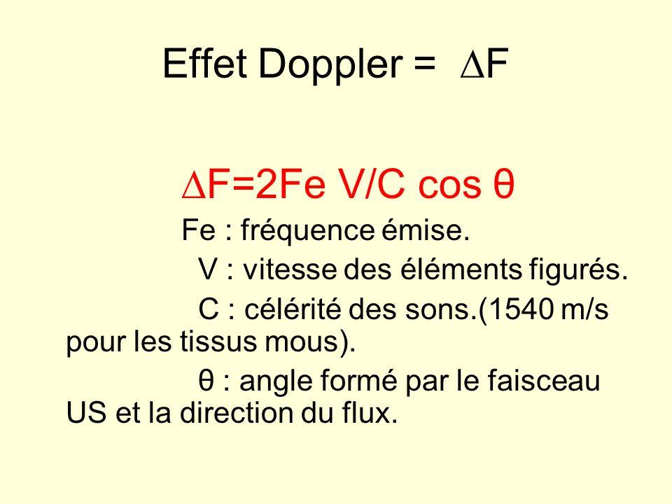Effet Doppler = ∆F ∆F=2Fe V/C cos θ Fe : fréquence émise.