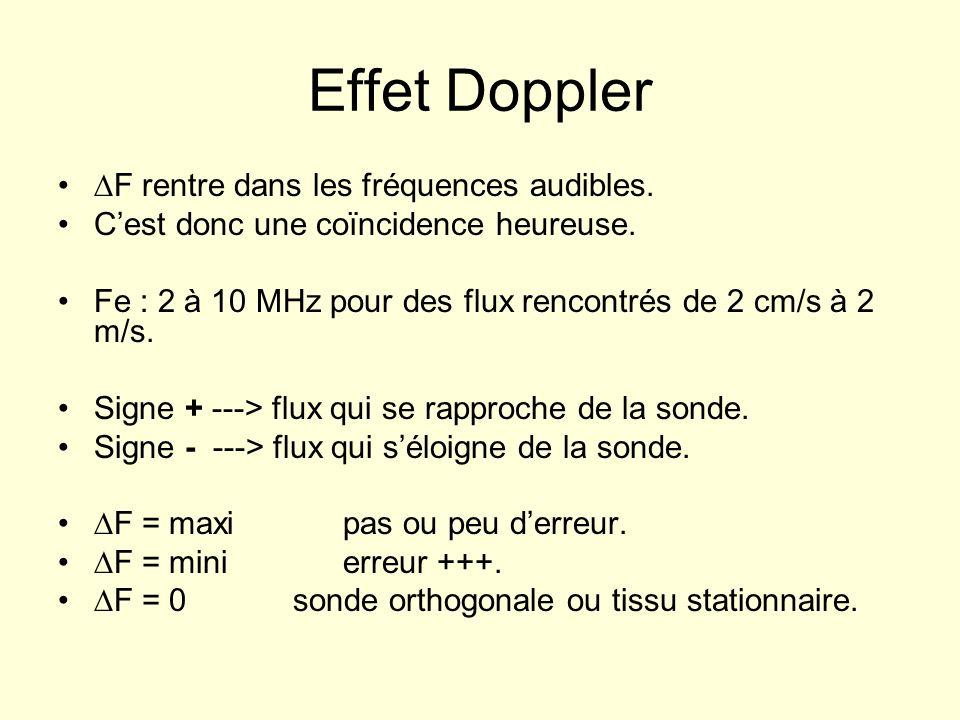 Effet Doppler ∆F rentre dans les fréquences audibles.