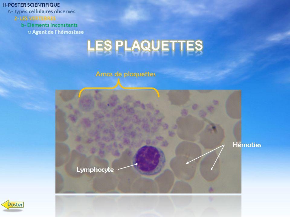 LES PLAQUETTES Amas de plaquettes Hématies Lymphocyte