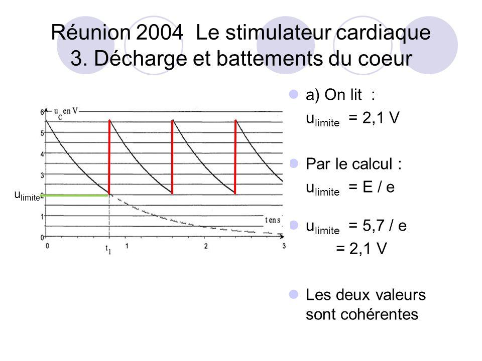 Réunion 2004 Le stimulateur cardiaque 3