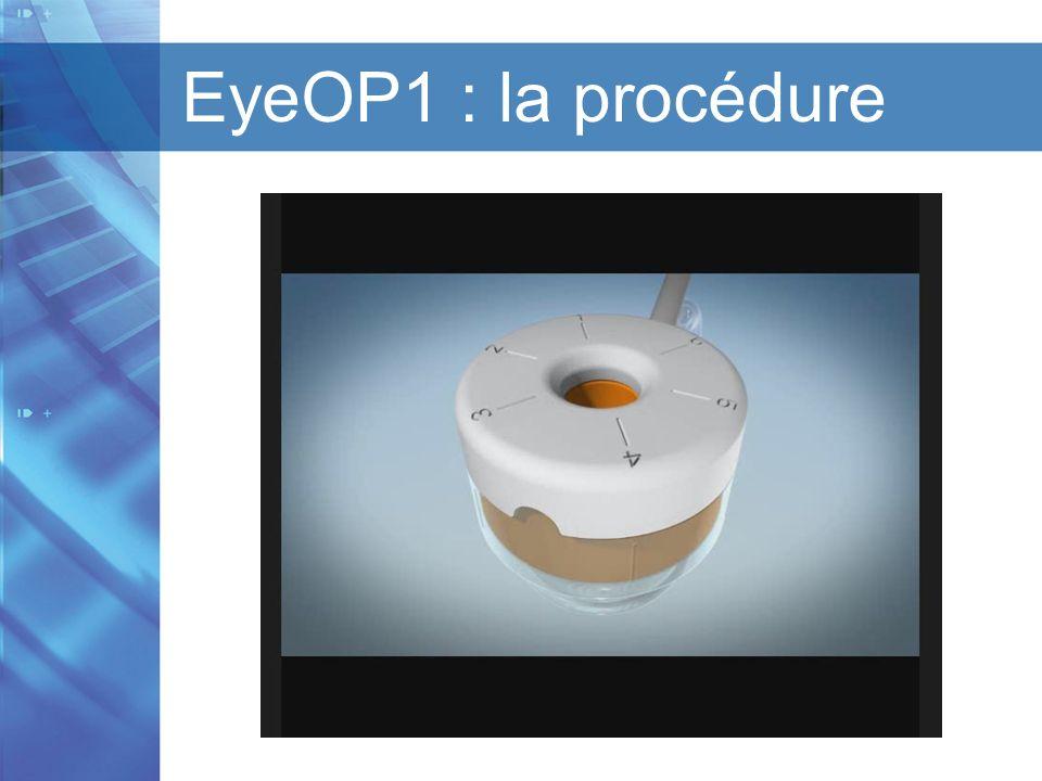 EyeOP1 : la procédure