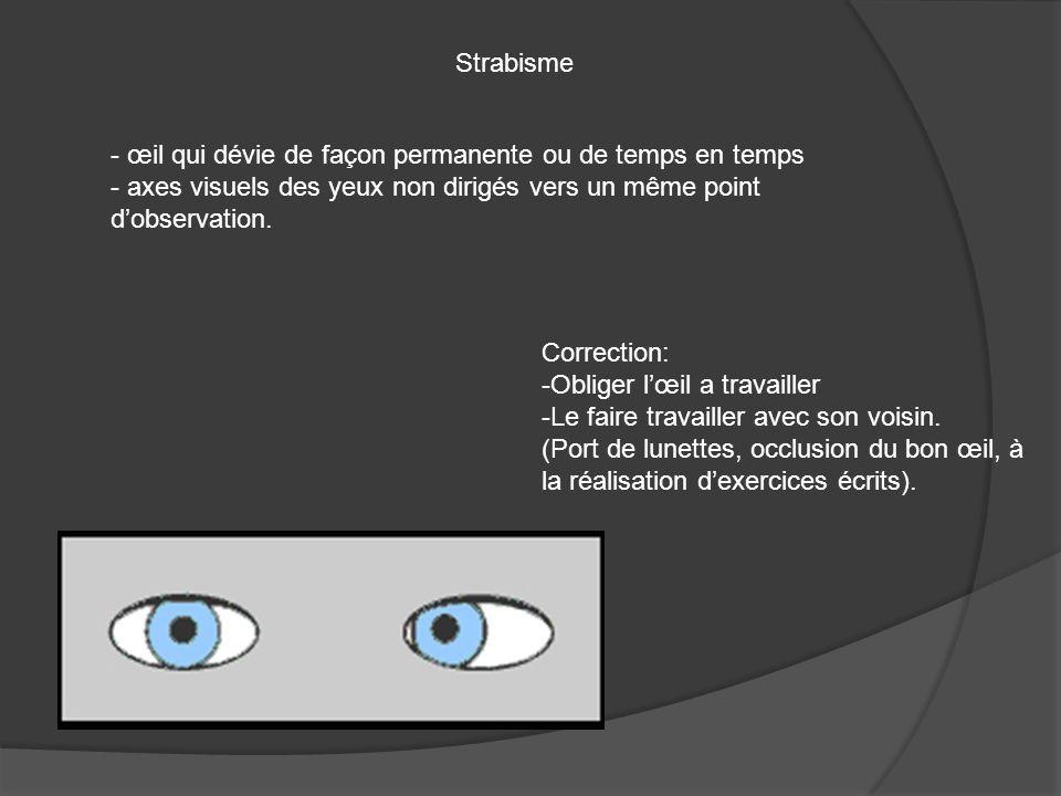 Strabisme œil qui dévie de façon permanente ou de temps en temps. axes visuels des yeux non dirigés vers un même point d'observation.