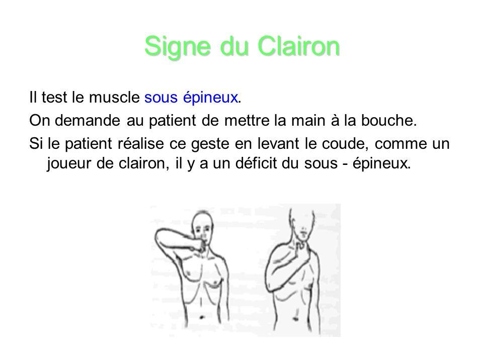 Signe du Clairon Il test le muscle sous épineux.