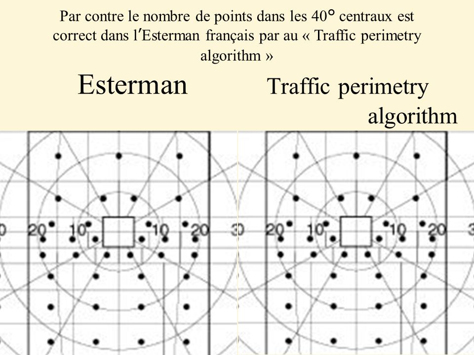 Esterman Traffic perimetry algorithm