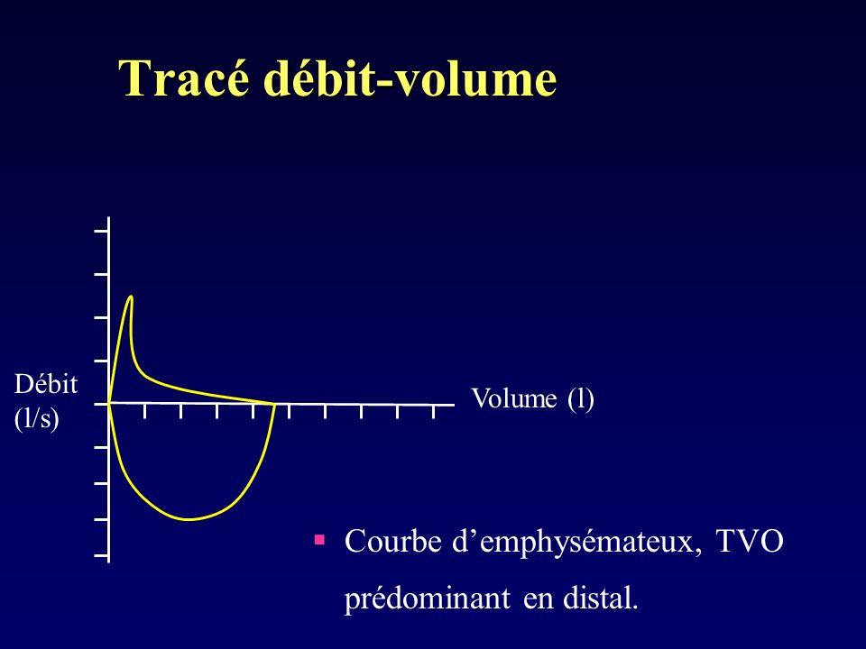 Tracé débit-volume Courbe d'emphysémateux, TVO prédominant en distal.