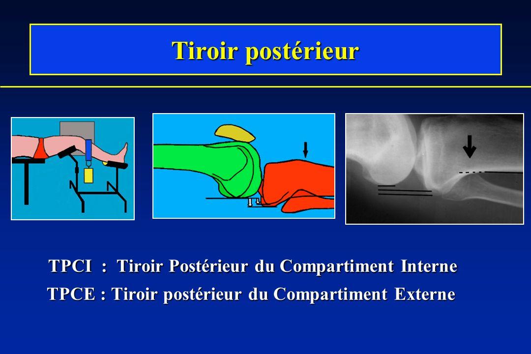 TPCI : Tiroir Postérieur du Compartiment Interne