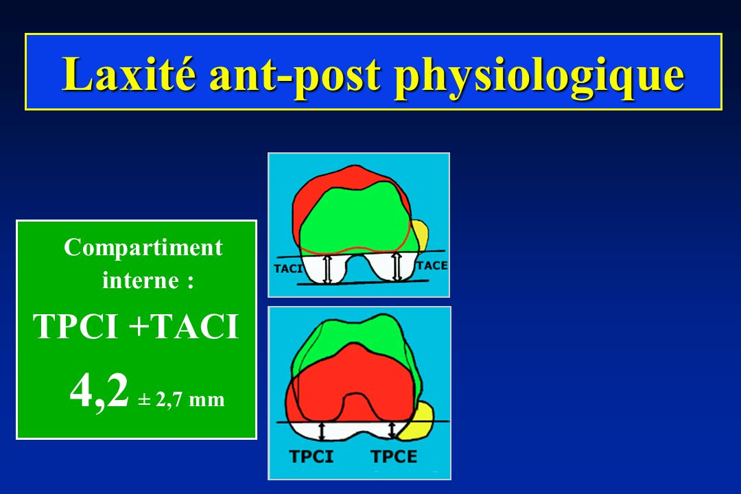 Laxité ant-post physiologique Compartiment interne :