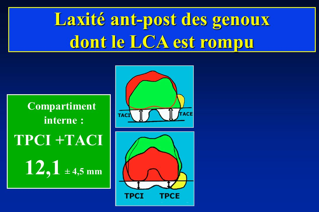 Laxité ant-post des genoux Compartiment interne :