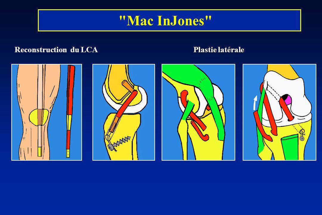 Mac InJones Reconstruction du LCA Plastie latérale