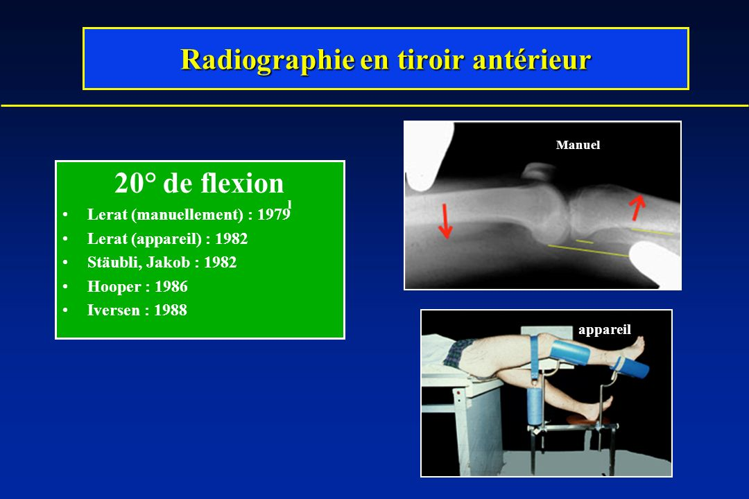 Radiographie en tiroir antérieur