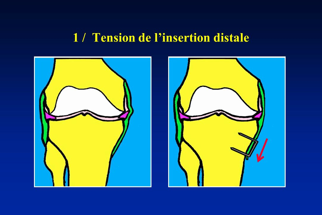 1 / Tension de l'insertion distale
