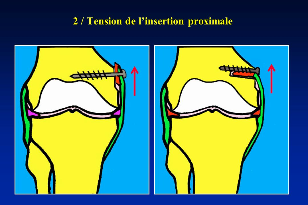 2 / Tension de l'insertion proximale