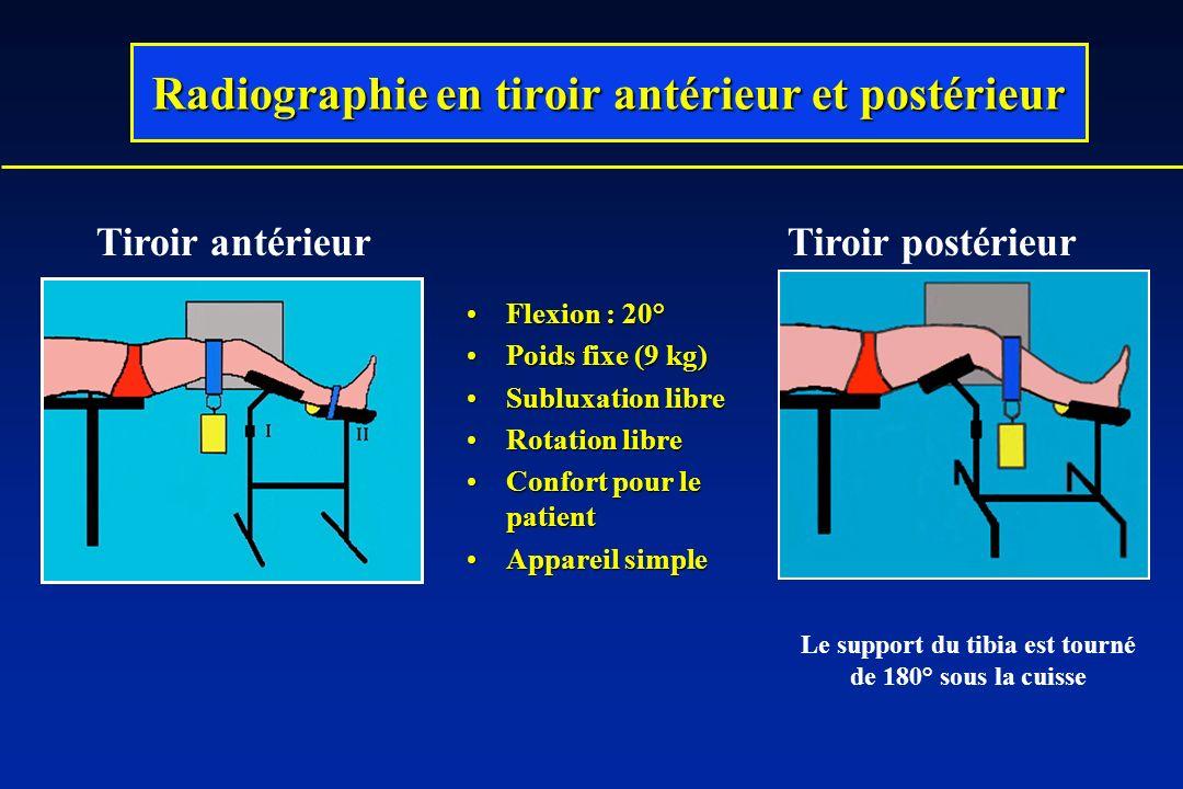 Radiographie en tiroir antérieur et postérieur