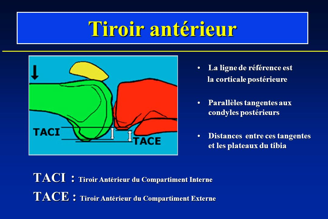 Tiroir antérieur TACI : Tiroir Antérieur du Compartiment Interne
