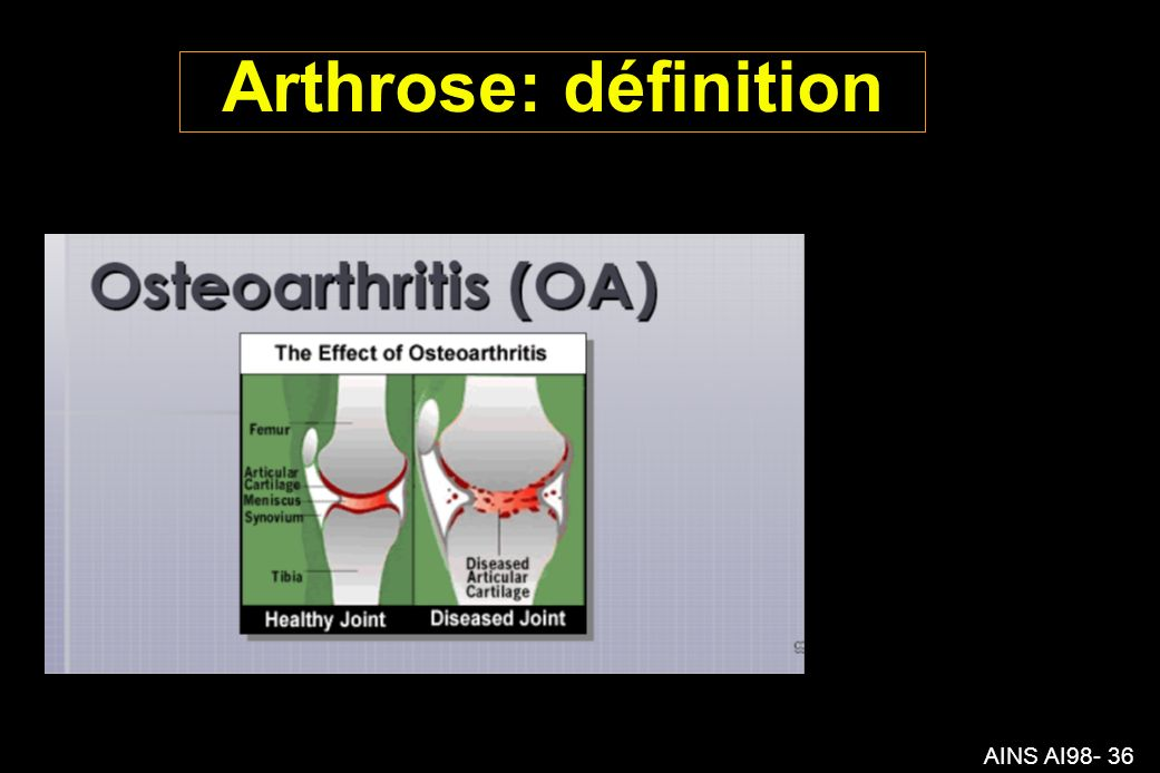 Arthrose: définition