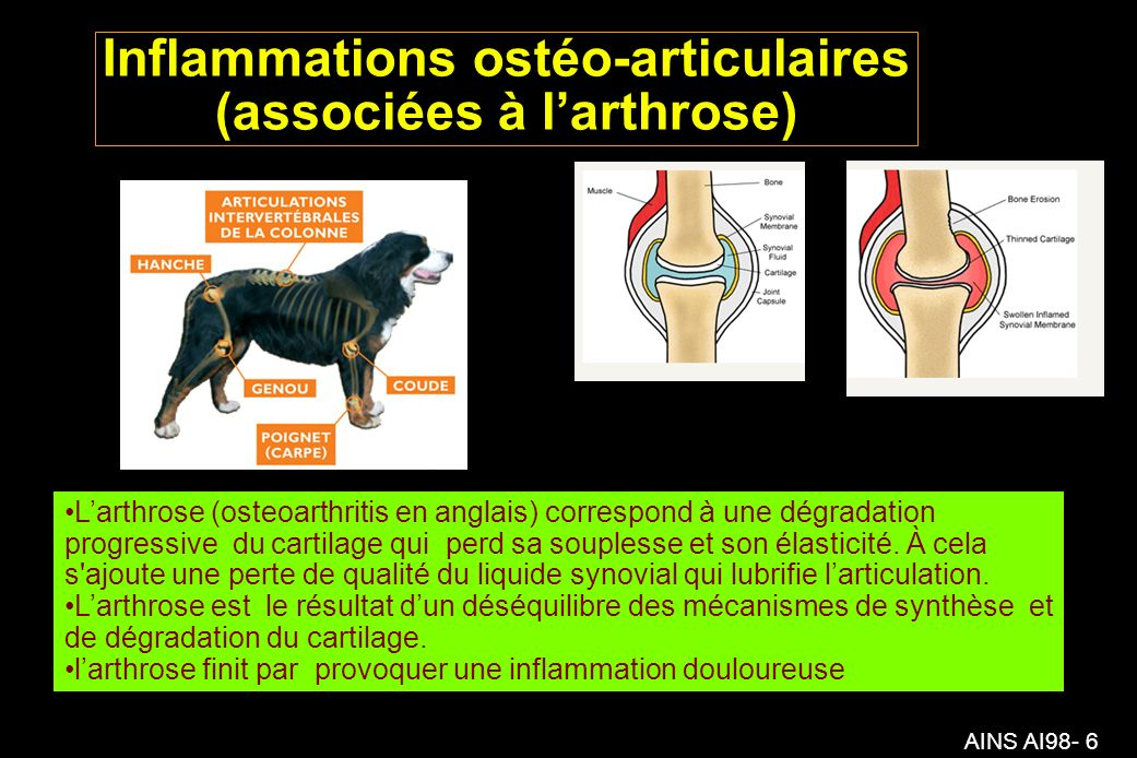 Inflammations ostéo-articulaires (associées à l'arthrose)