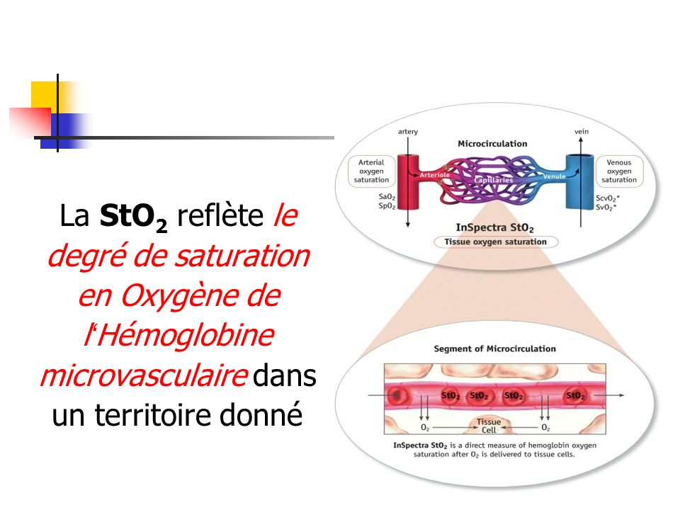La StO2 reflète le degré de saturation en Oxygène de l'Hémoglobine microvasculaire dans un territoire donné