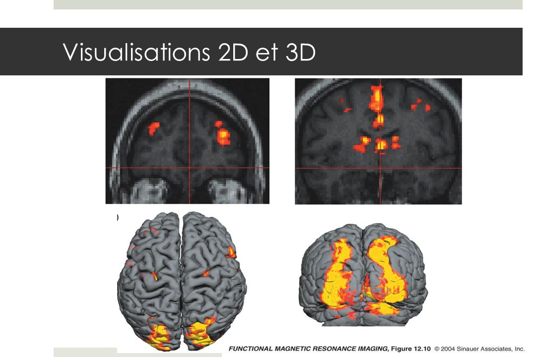 Visualisations 2D et 3D fmri-fig-12-10-0.jpg
