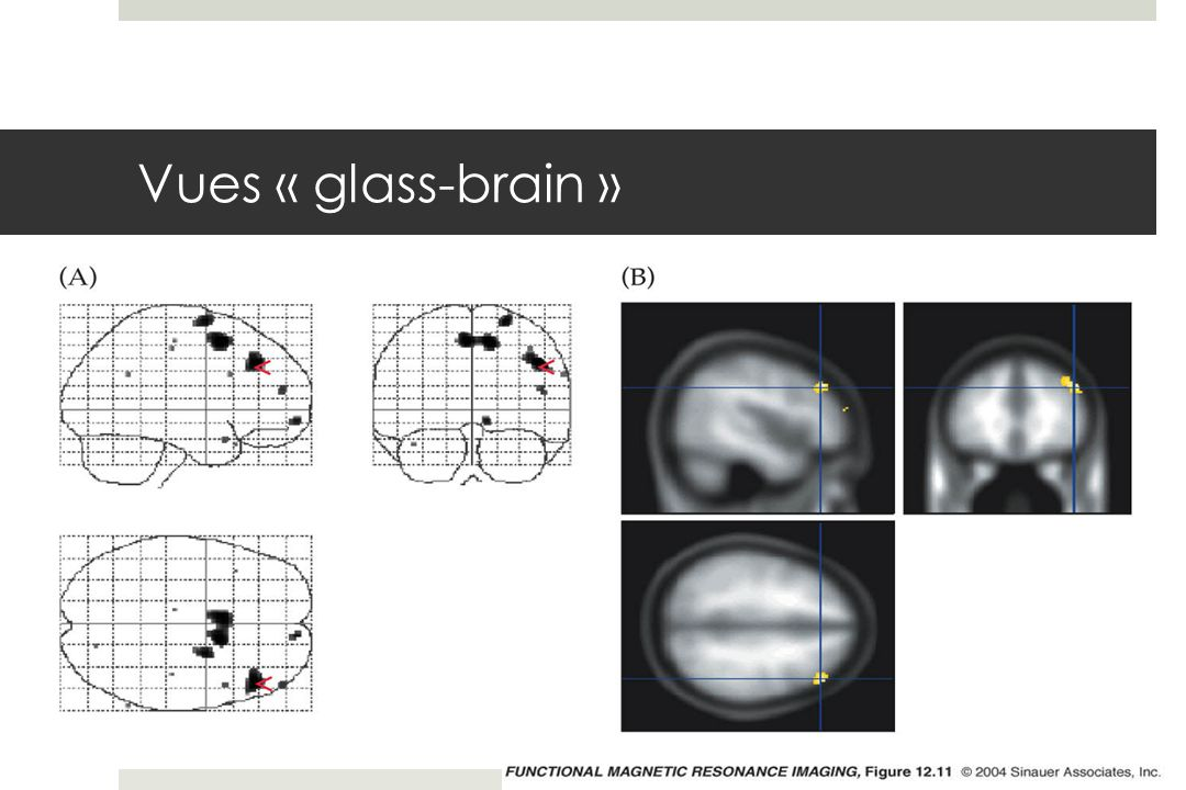 Vues « glass-brain » fmri-fig-12-11-0.jpg