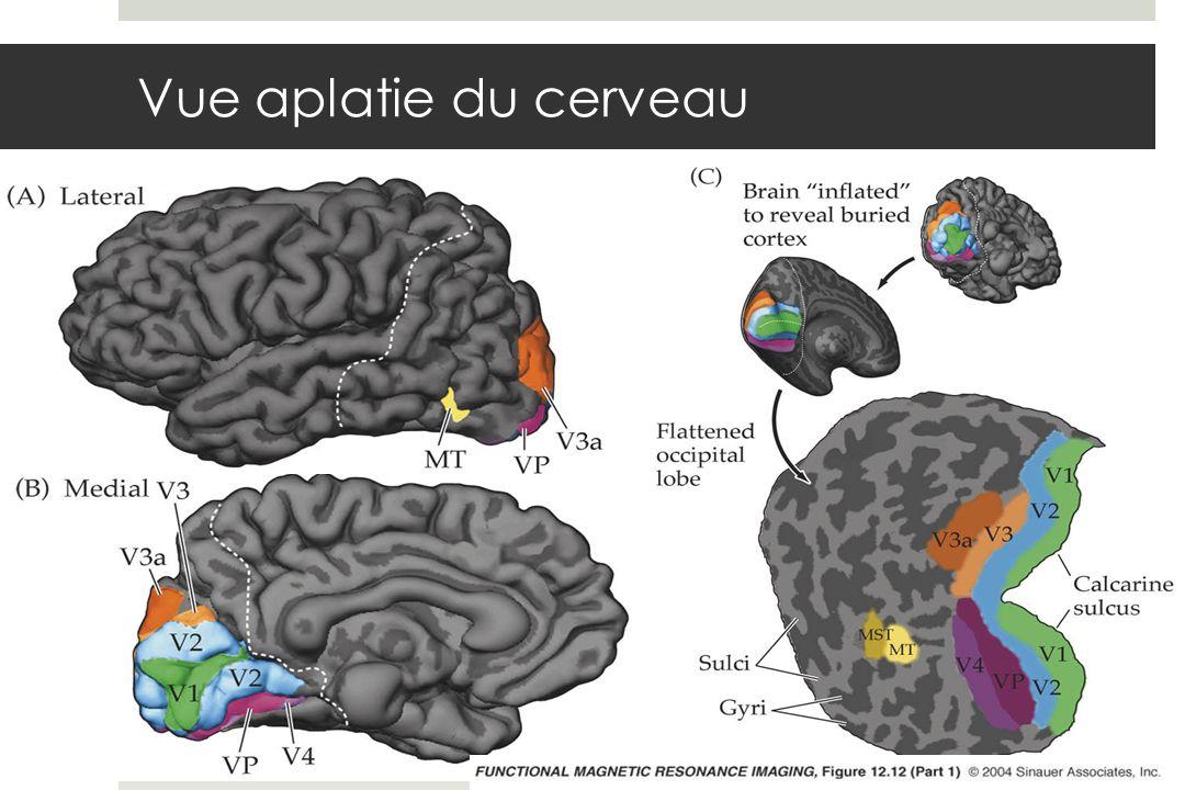 Vue aplatie du cerveau fmri-fig-12-12-1.jpg