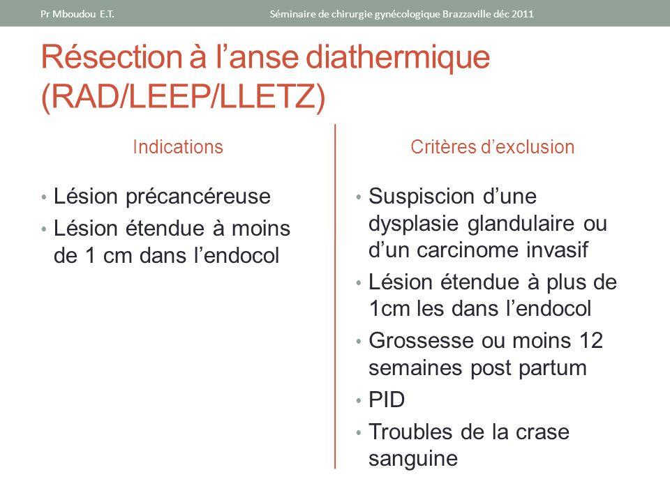 Résection à l'anse diathermique (RAD/LEEP/LLETZ)