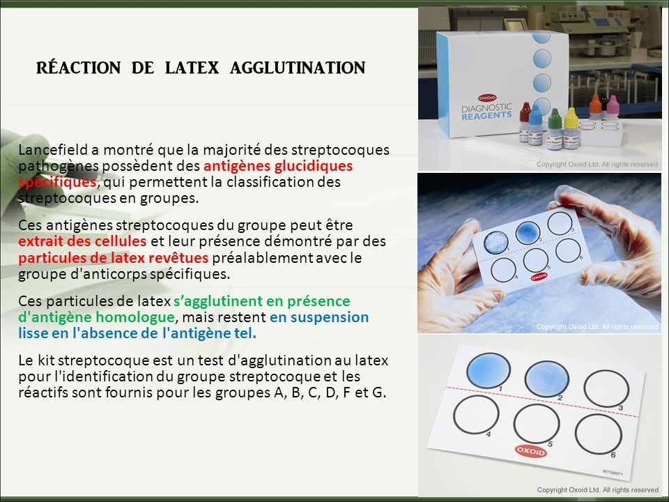 réaction de latex agglutination