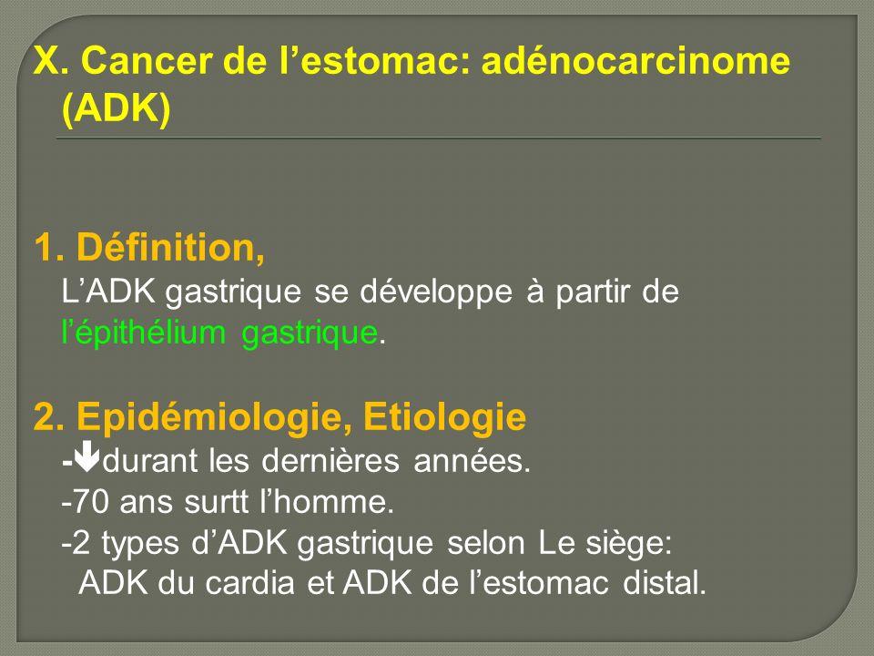 X. Cancer de l'estomac: adénocarcinome (ADK)
