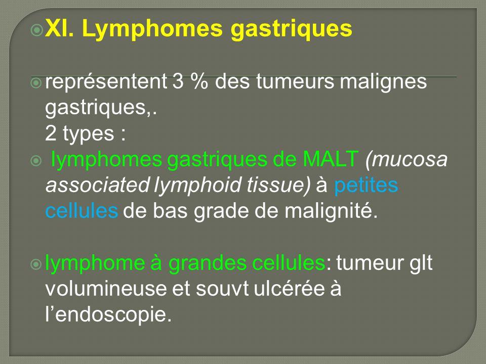 XI. Lymphomes gastriques