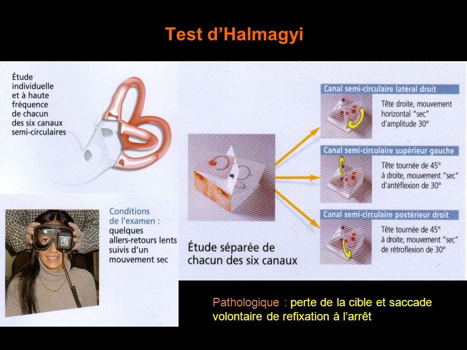 Test d'Halmagyi Pathologique : perte de la cible et saccade volontaire de refixation à l'arrêt