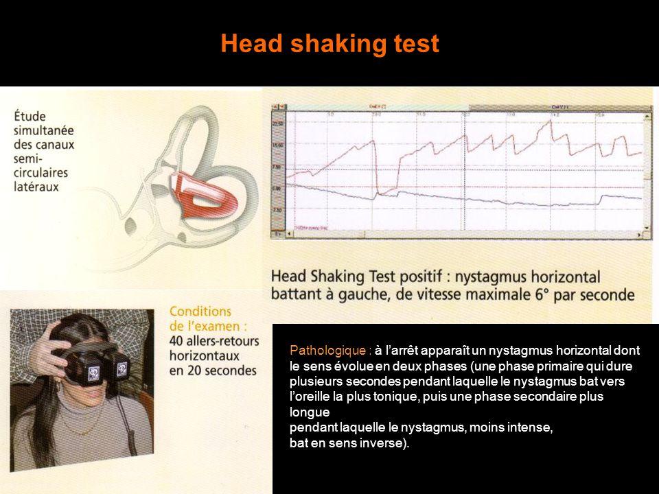 Head shaking test Pathologique : à l'arrêt apparaît un nystagmus horizontal dont. le sens évolue en deux phases (une phase primaire qui dure.