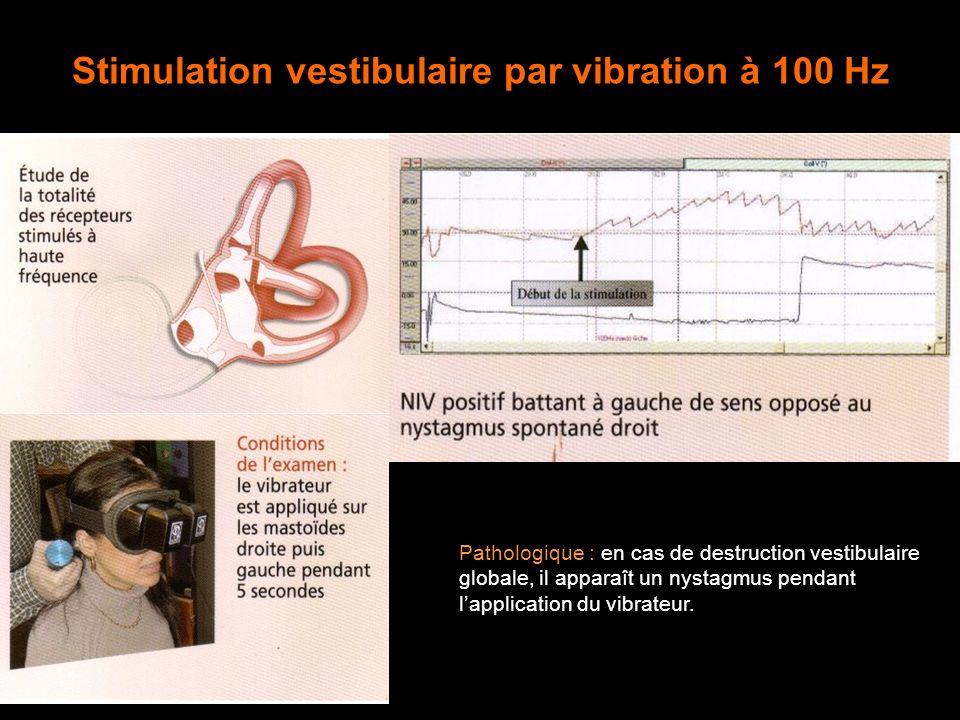 Stimulation vestibulaire par vibration à 100 Hz