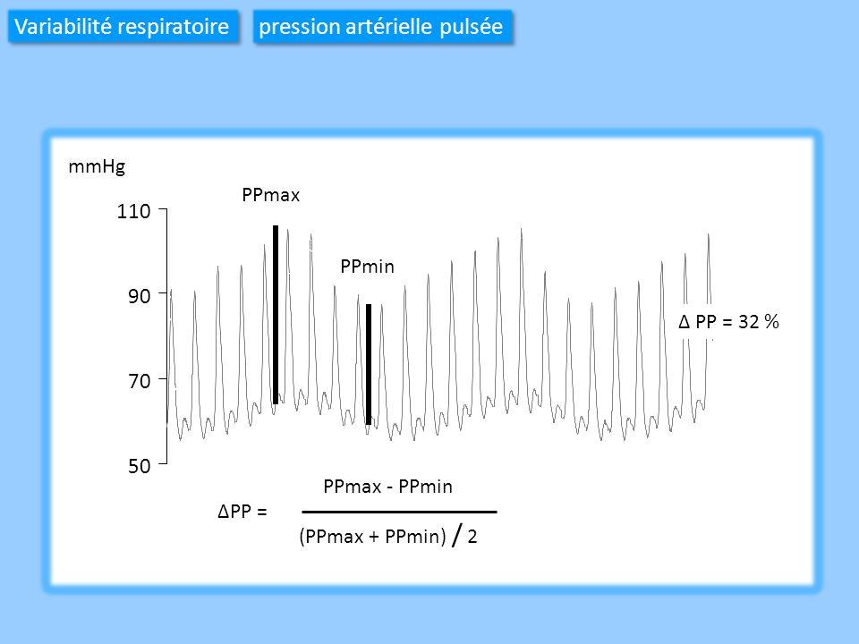 Variabilité respiratoire pression artérielle pulsée
