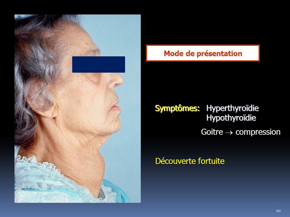 Symptômes: Hyperthyroïdie Hypothyroïdie