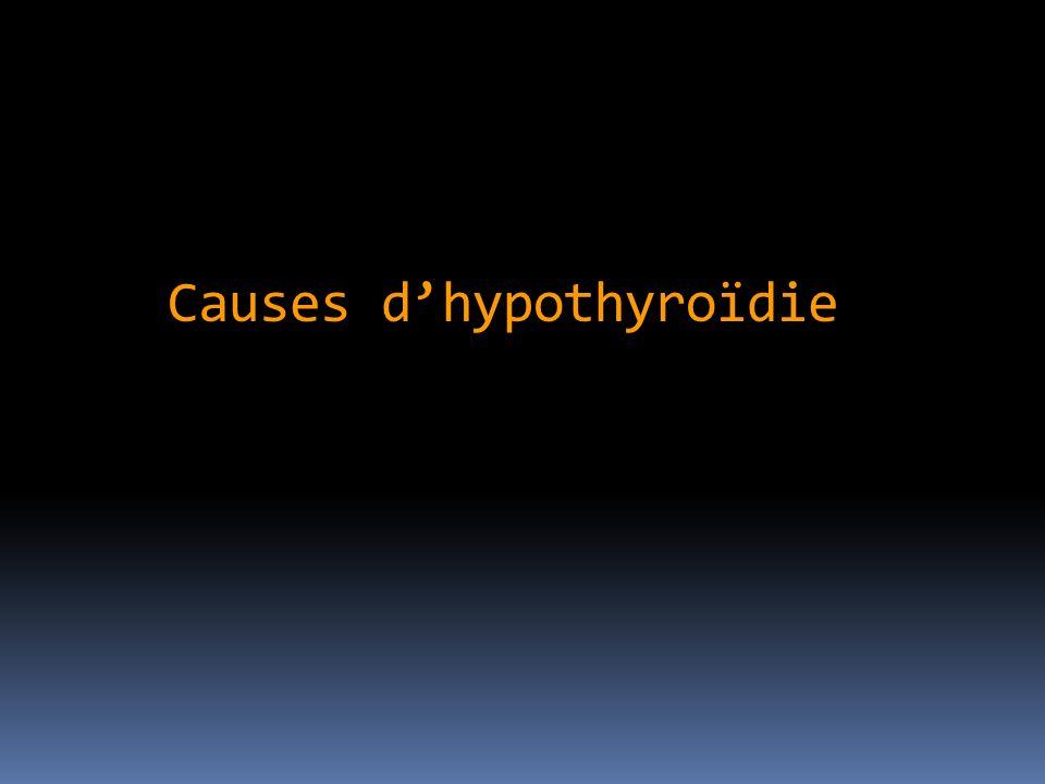 Causes d'hypothyroïdie