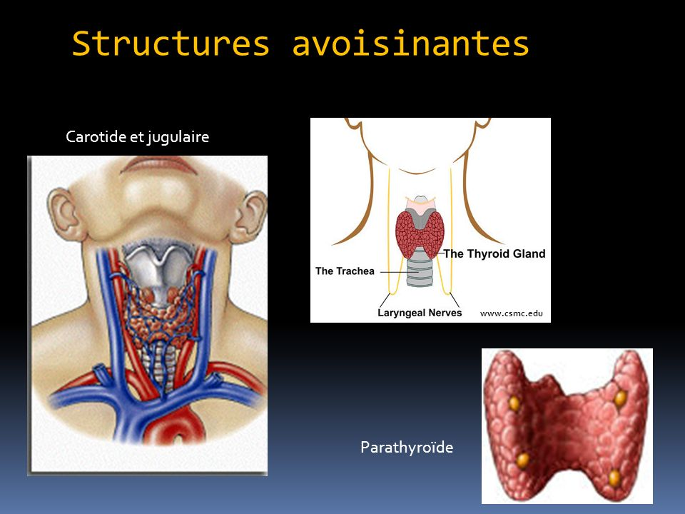 Structures avoisinantes