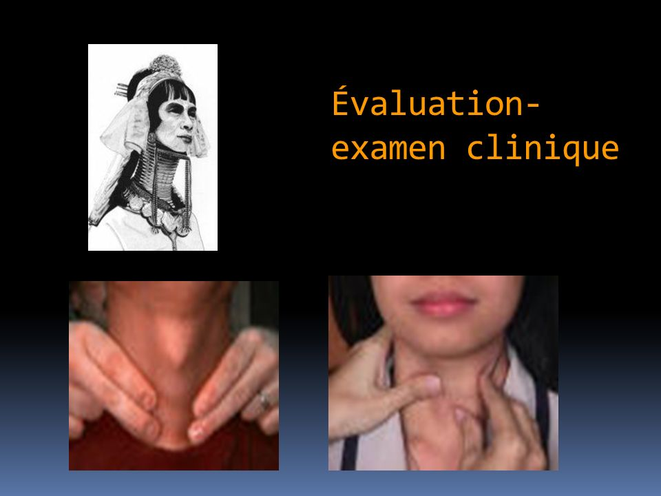 Évaluation- examen clinique